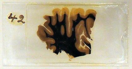 روایتی جالب از سرقت مغز انیشتین