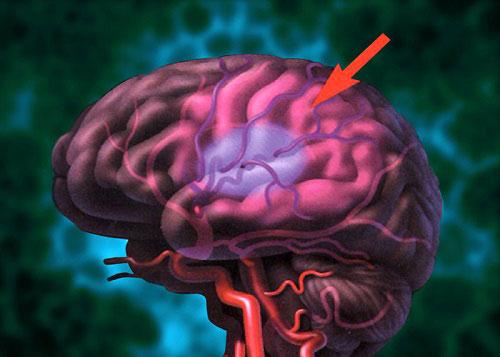 سکته مغزی چیست؟