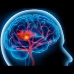 آیا شخصیت پس از بروز یک سکتۀ مغزی بهتر میشود؟