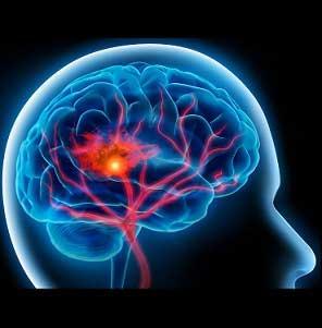 شخصیت پس از بروز یک سکتۀ مغزی